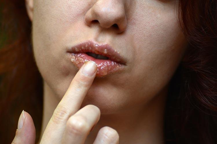 Woman exfoliating lips with a sugar scrub